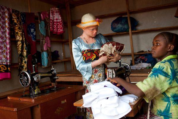 ragazza albina tanzania