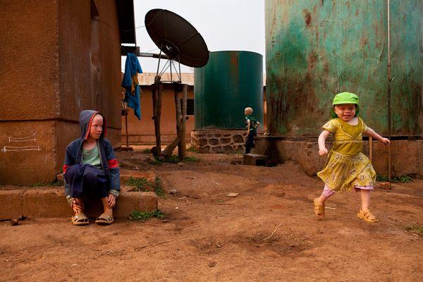 bambini albini tanzanesi giocano