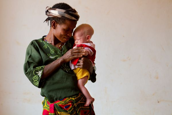 bambina albina tanzania