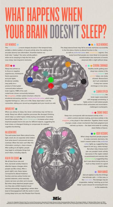 infografica cervello danni sonno