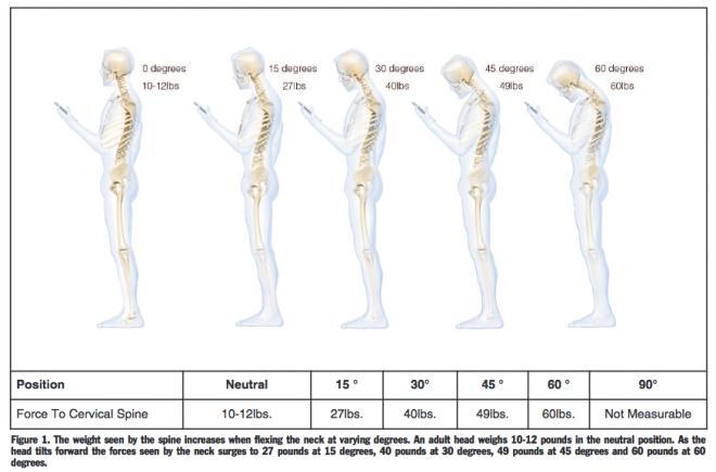 smartphone postura