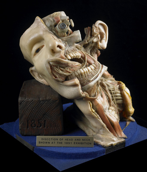 Joseph Towne wax model, created for 1851 Great Exhibition