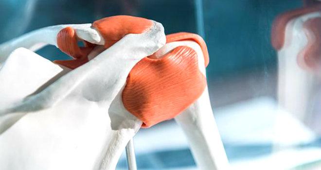 Sezione Cartilagine 3D