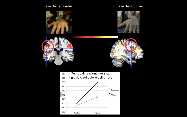 Cervello-PoliticallyCorrect