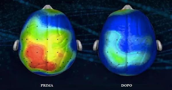 cervello canzone